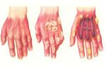 Что делать при химическом ожоге кожи, глаз, ЖКТ: первая помощь и лечение
