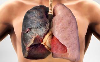 Как почистить легкие курильщика в домашних условиях: обзор народных средств