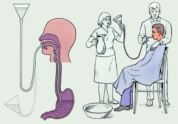 Схема промывания желудка зондом