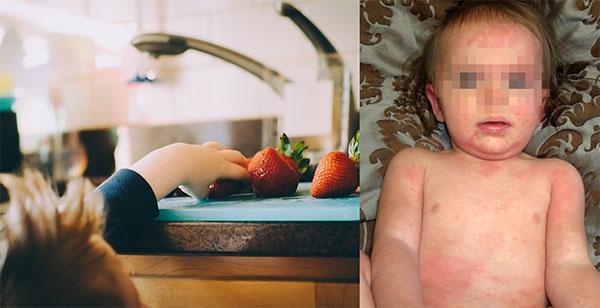 Аллергия на клубнику у детей