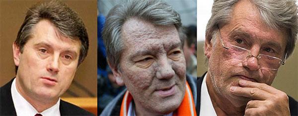 Отравление Ющенко диоксином