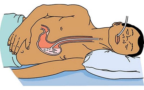 Промывание желудка человеку без сознания