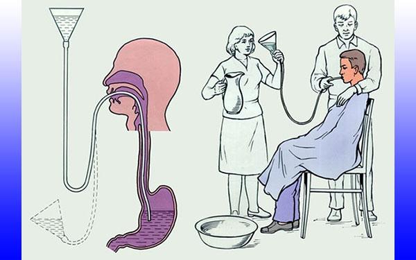 Схемы промывания желудка зондом